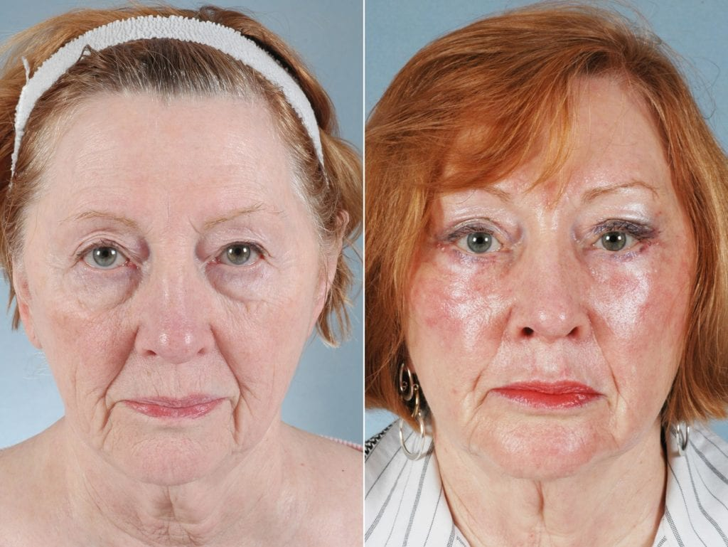 Laser Skin Resurfacing Before and After Photos in Plymouth, Pennsylvania, Patient 4316