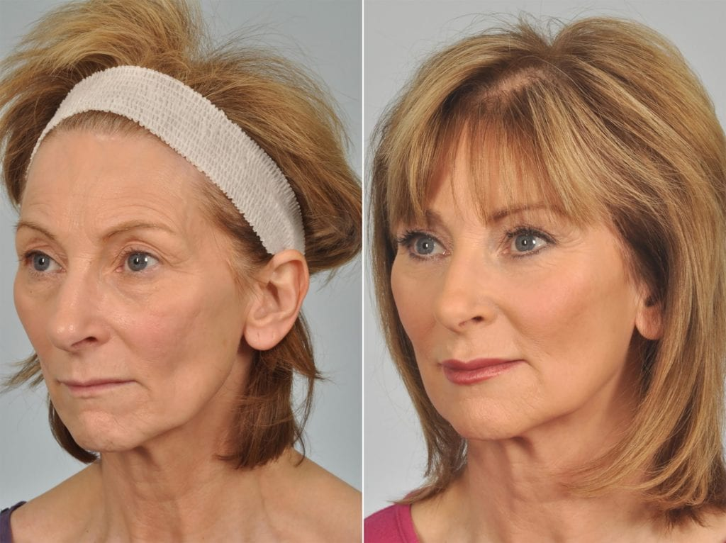 Midface Lift Surgery Before and After Photos in Plymouth, Pennsylvania, Patient 3087
