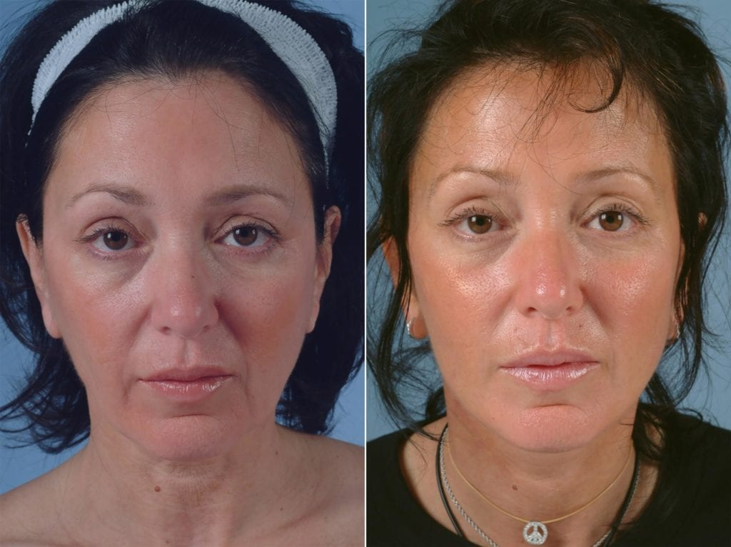 Minimal Incision Facelift Before and After Photos in Plymouth, Pennsylvania, Patient 3159