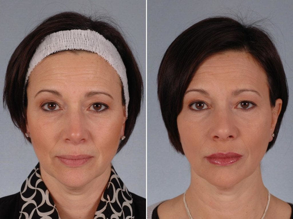 Fillers Before and After Photos in Plymouth, Pennsylvania, Patient 3767