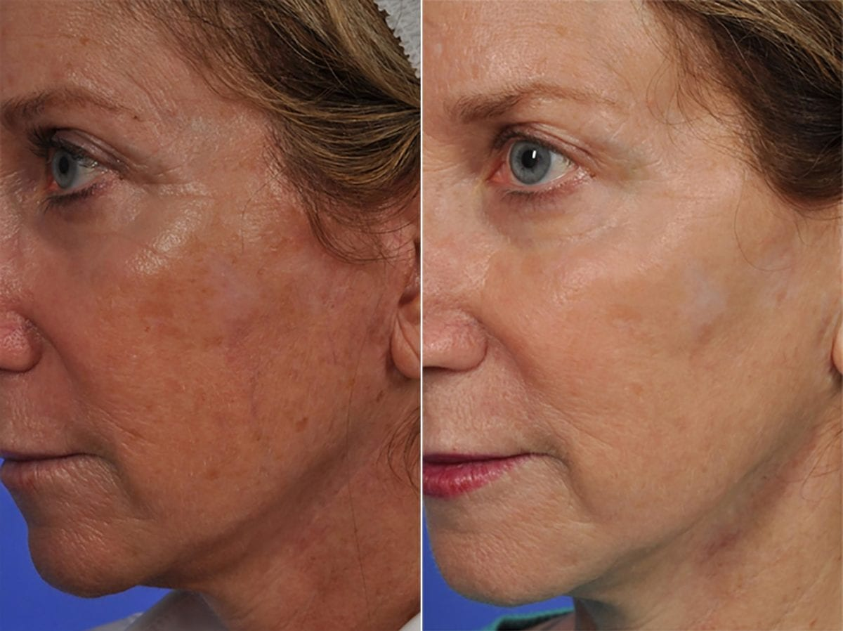 Phototherapy – BBL/IPL Before and After Photos in Plymouth, Pennsylvania, Patient 4943