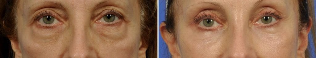 Cosmetic Blepharoplasty Before and After Photos in Plymouth, Pennsylvania, Patient 6076