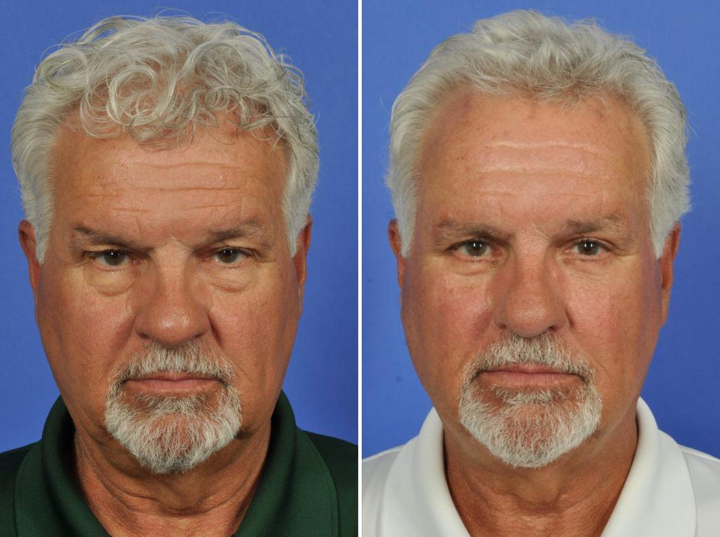 Cosmetic Blepharoplasty Before and After Photos in Plymouth, Pennsylvania, Patient 6027