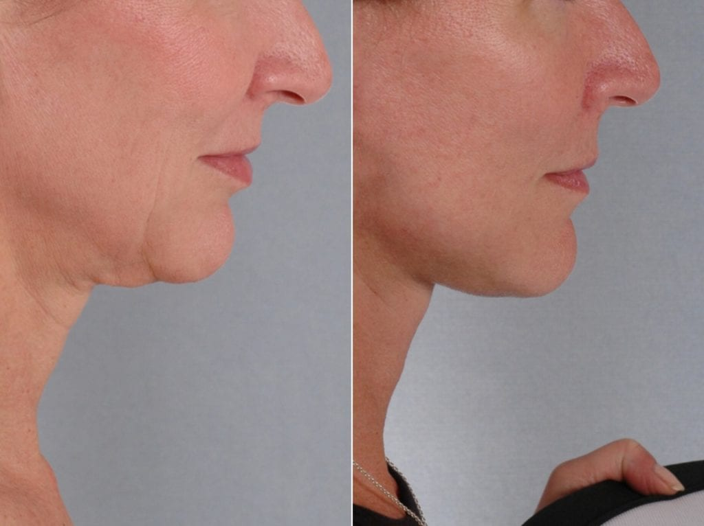 Facelift and Necklift Surgery Before and After Photos in Plymouth, Pennsylvania, Patient 3288
