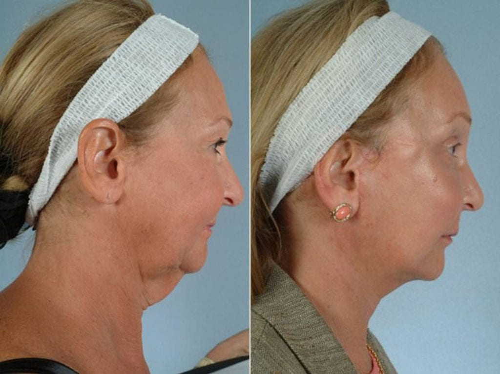 Facelift and Necklift Surgery Before and After Photos in Plymouth, Pennsylvania, Patient 3361