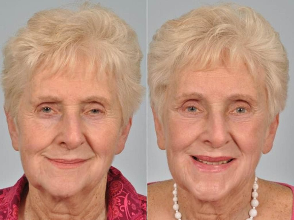 Droopy Eyelids – Ptosis Surgery Before and After Photos in Plymouth, Pennsylvania, Patient 3609