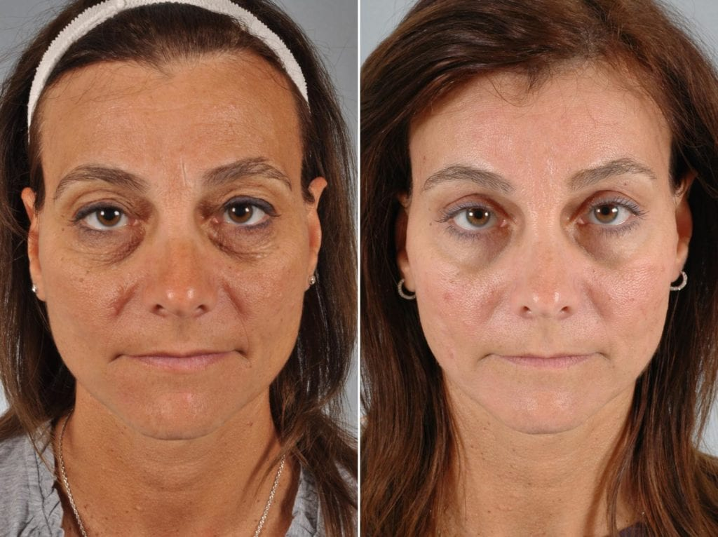 Cosmetic Blepharoplasty Before and After Photos in Plymouth, Pennsylvania, Patient 6386
