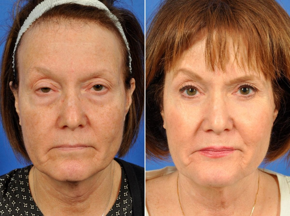 Cosmetic Blepharoplasty Before and After Photos in Plymouth, Pennsylvania, Patient 6470