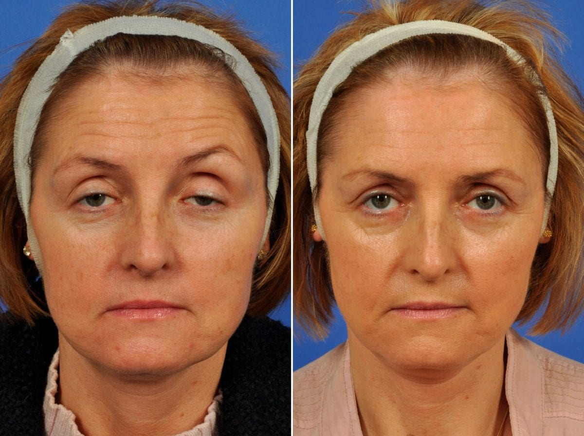 Droopy Eyelids – Ptosis Surgery Before and After Photos in Plymouth, Pennsylvania, Patient 6476