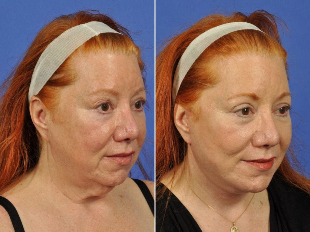 Facelift and Necklift Surgery Before and After Photos in Plymouth, Pennsylvania, Patient 6425