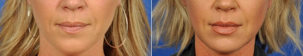 Fillers Before and After Photos in Plymouth, Pennsylvania, Patient 6486