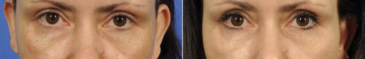 Intracel Before and After Photos in Plymouth, Pennsylvania, Patient 6335