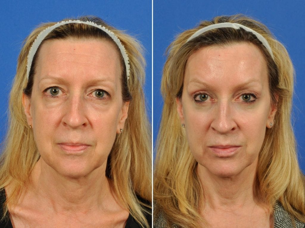 Midface Lift Surgery Before and After Photos in Plymouth, Pennsylvania, Patient 6512