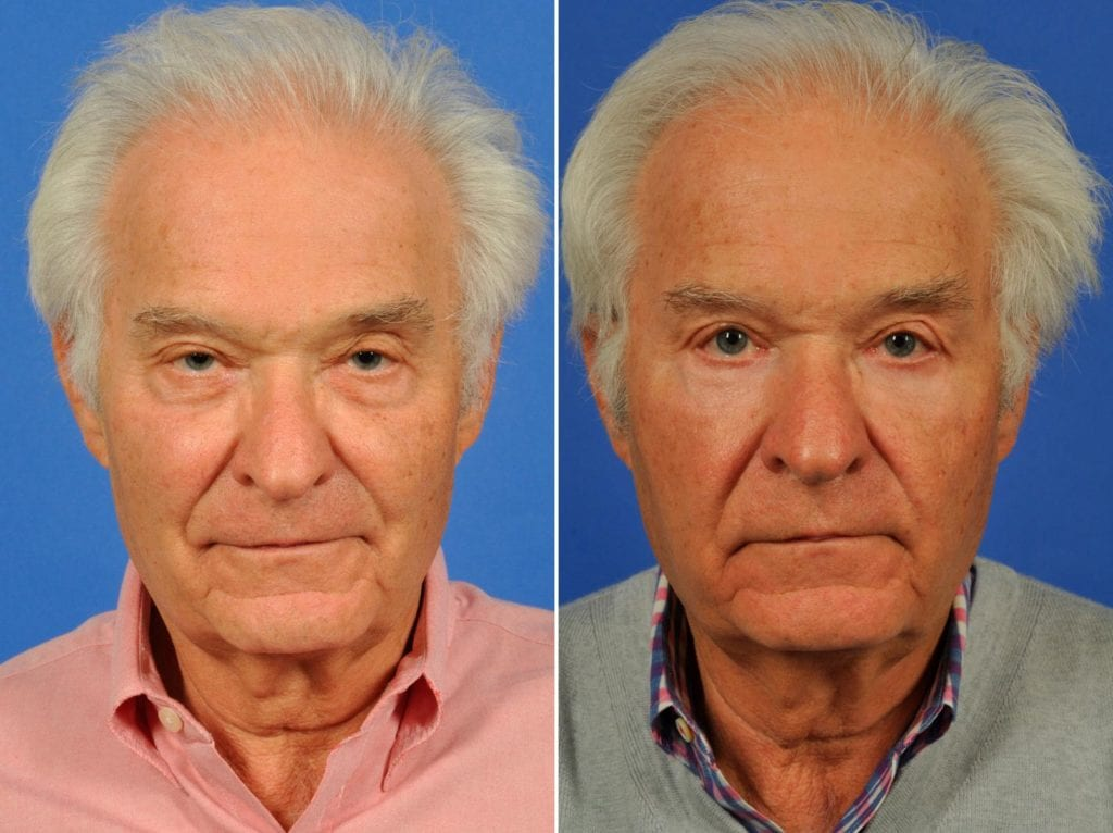 Procedures for Men Before and After Photos in Plymouth, Pennsylvania, Patient 6504