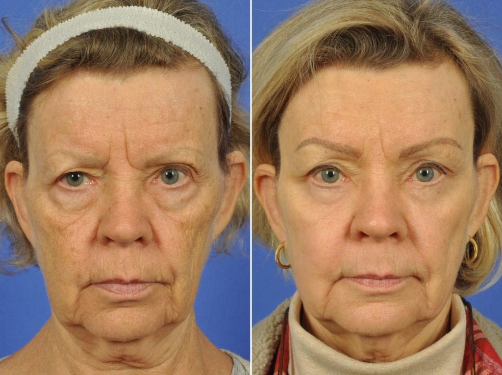Brow Lift Surgery Before and After Photos in Plymouth, Pennsylvania, Patient 6843