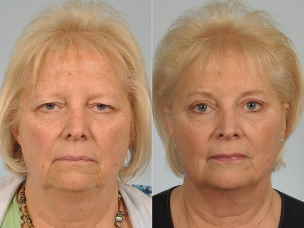 Cosmetic Blepharoplasty Before and After Photos in Plymouth, Pennsylvania, Patient 6858