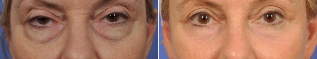 Micromidfacelift Before and After Photos in Plymouth, Pennsylvania, Patient 6770