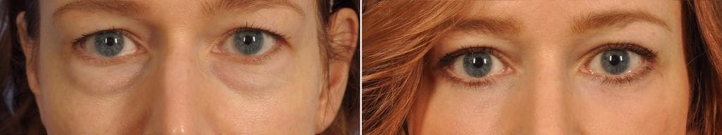 Midface Lift Surgery Before and After Photos in Plymouth, Pennsylvania, Patient 6758