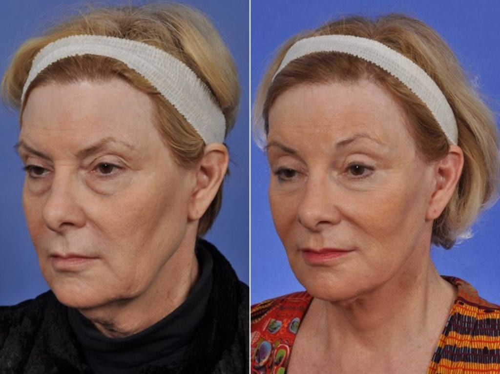 Midface Lift Surgery Before and After Photos in Plymouth, Pennsylvania, Patient 6771