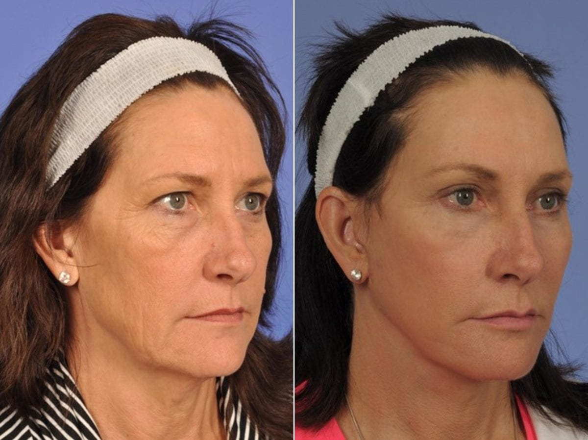 Midface Lift Surgery Before and After Photos in Plymouth, Pennsylvania, Patient 6787