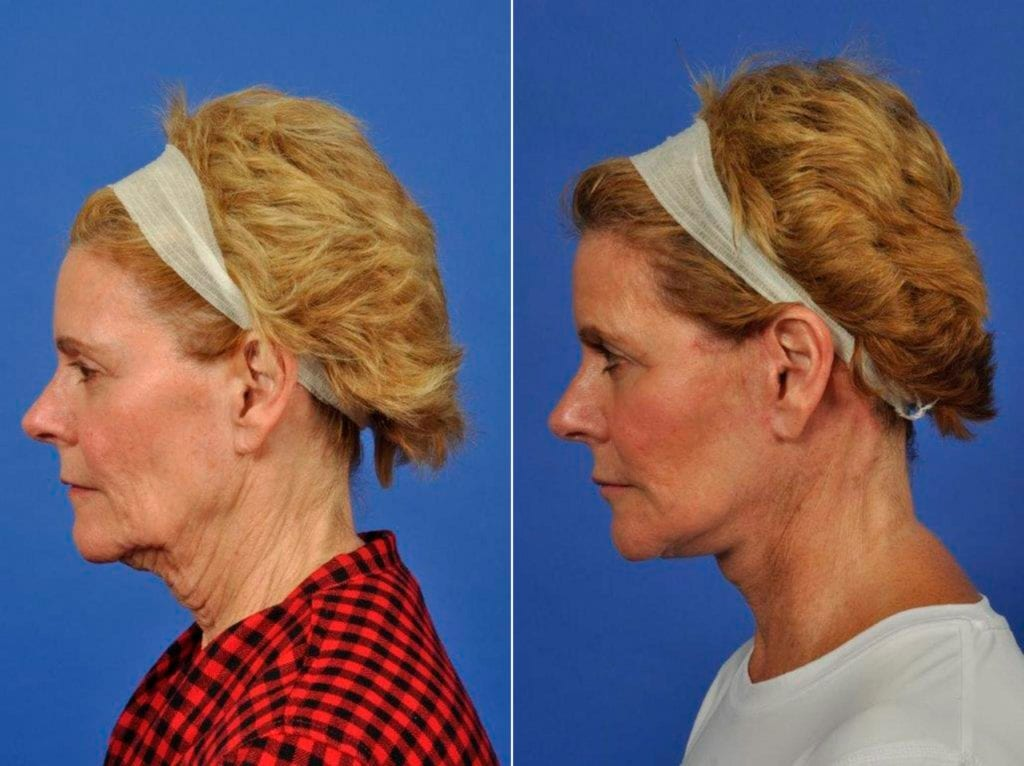 Facelift and Necklift Surgery Before and After Photos in Plymouth, Pennsylvania, Patient 7041