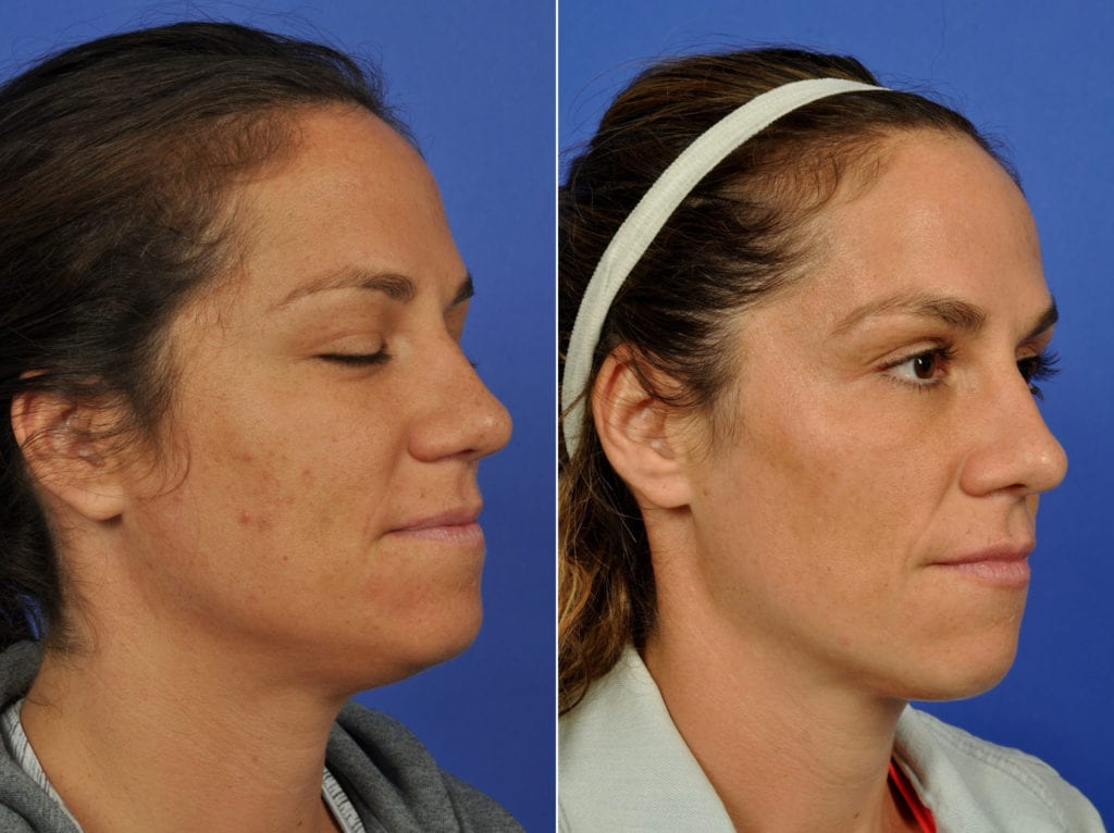 Clear and Brilliant Laser Resurfacing Before and After Photos in Plymouth, Pennsylvania, Patient 7727