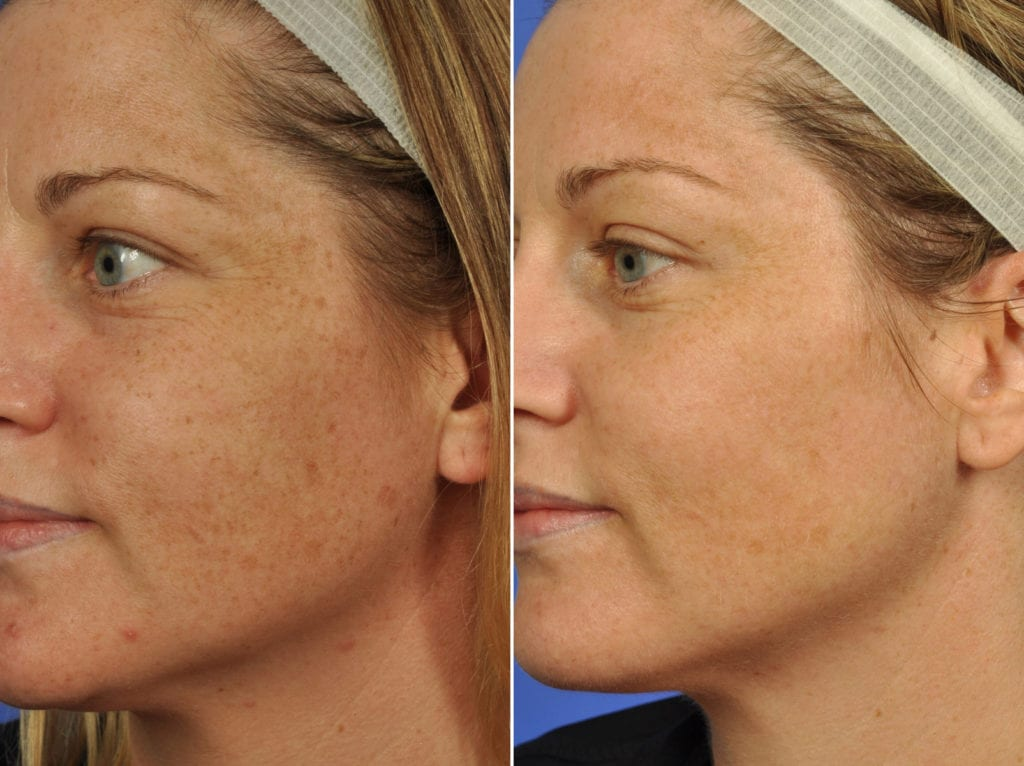 Clear and Brilliant Laser Resurfacing Before and After Photos in Plymouth, Pennsylvania, Patient 7737