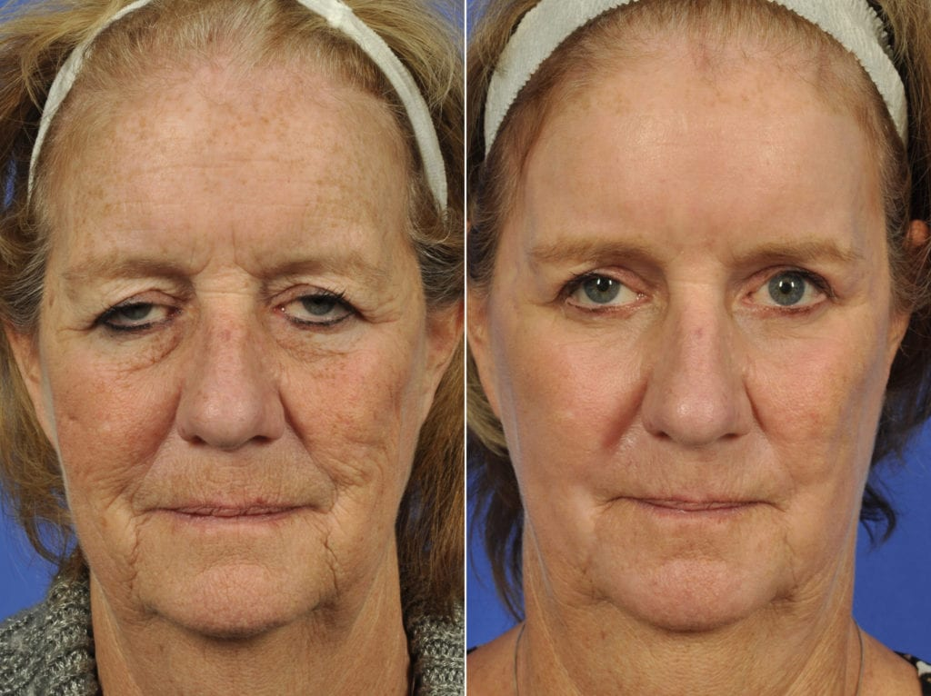 Droopy Eyelids – Ptosis Surgery Before and After Photos in Plymouth, Pennsylvania, Patient 7722